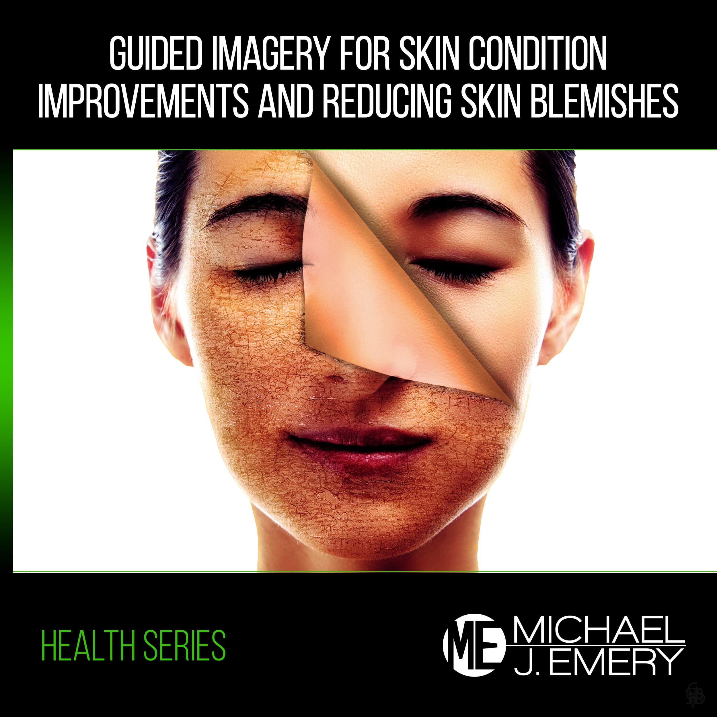 Guided-Imagery-for-Skin-Condition-Improvements-and-Reducing-Skin-Blemishes